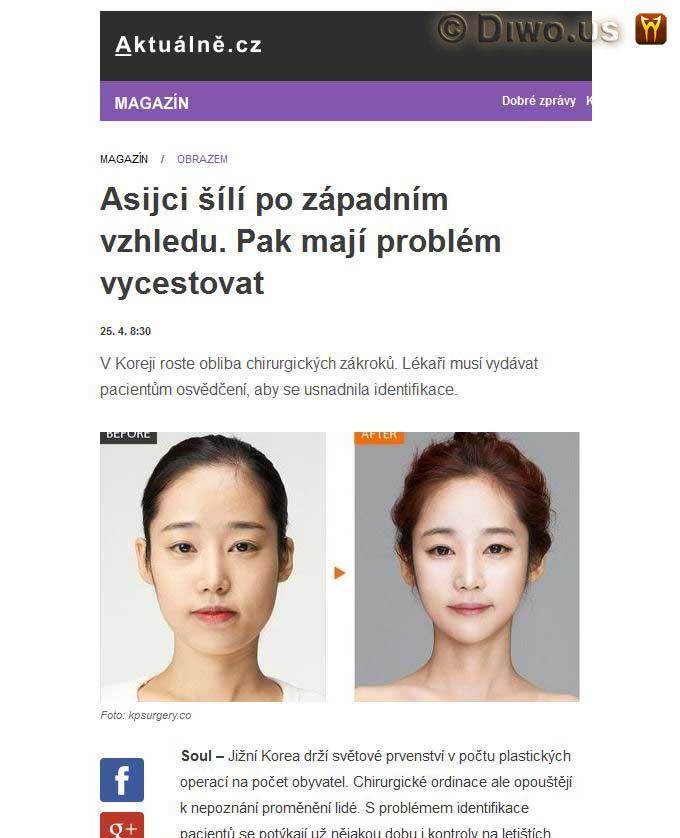 Diwous - Asiaté, identifikace, Jižní Korea, módní trend, plastická operace, plastika obličeje